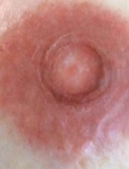 AREOLES